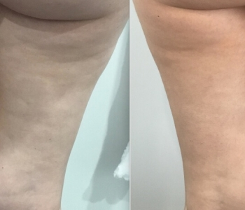 1 Fat Freezing 12 weeks upper inner thighs