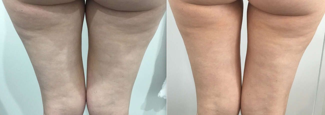1 Fat Freezing 12 weeks upper inner thighs - CosMedical Skin Solutions