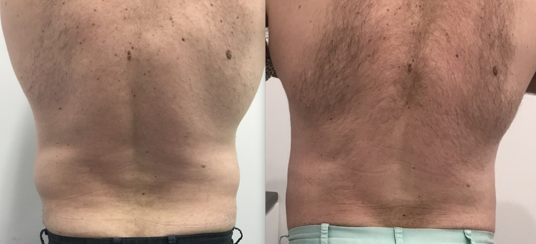 1 Treatment Fat Freezing Cryolipolysis Male Flanks