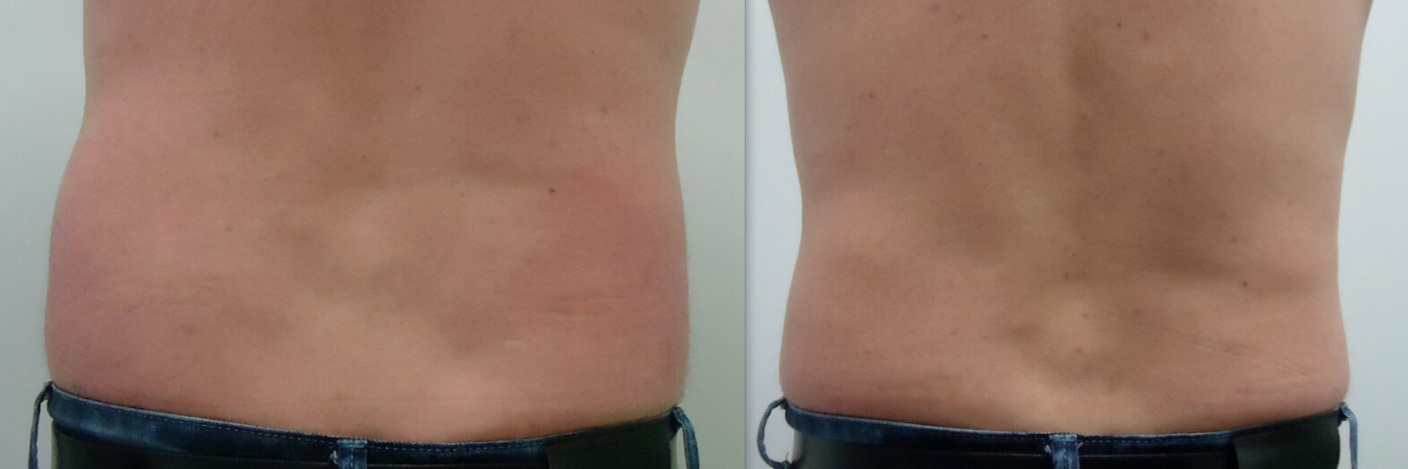 12 weeks post fat freezing flanks, rear view (reduced 2 belt notches)