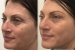 1 x IPL Photo rejuvenation