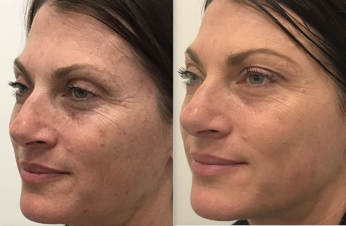 2 weeks post 1 IPL Photo rejuvenation