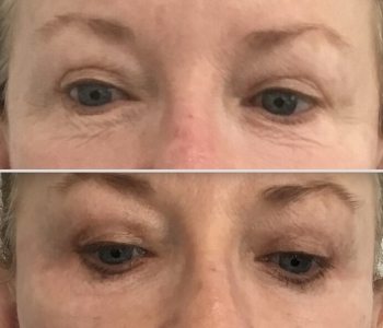6 weeks upper & lower lid plasma pen