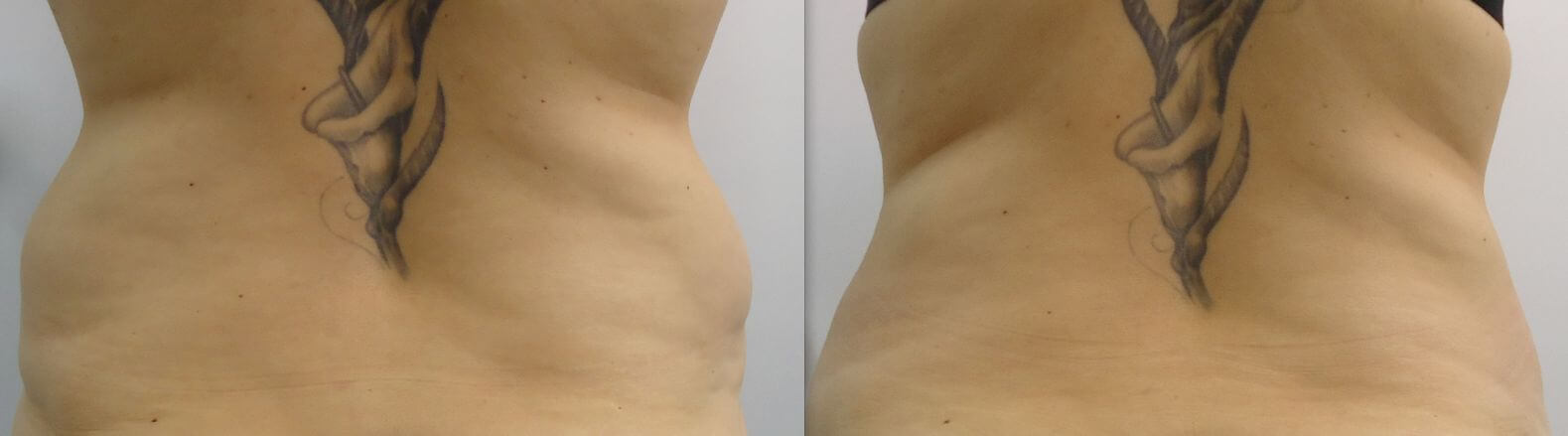 8 weeks after 1 treatment to improve irregularities from liposuction