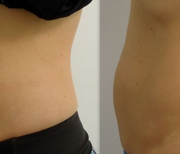 8 weeks after 1 treatment to the lower stomach