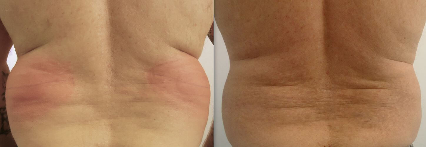 8 weeks after 1 treatment to the love handles