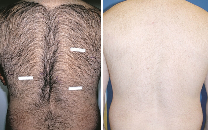 IPL Hair Removal back