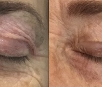 Pre & 12 Weeks post Plasma Eye Wrinkles
