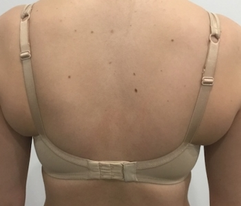Pre, 8 & 13 weeks post cryolipolysis bra bulge