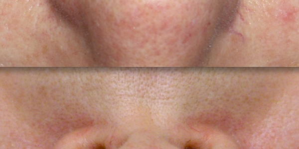 IPL Photo Rejuvenation - CosMedical Skin Solutions Perth