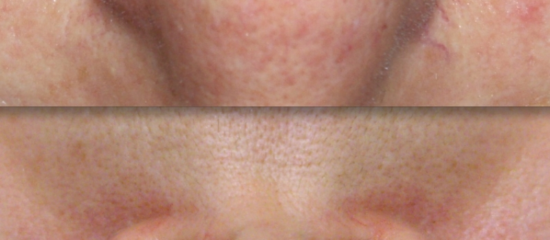 IPL Photo Rejuvenation