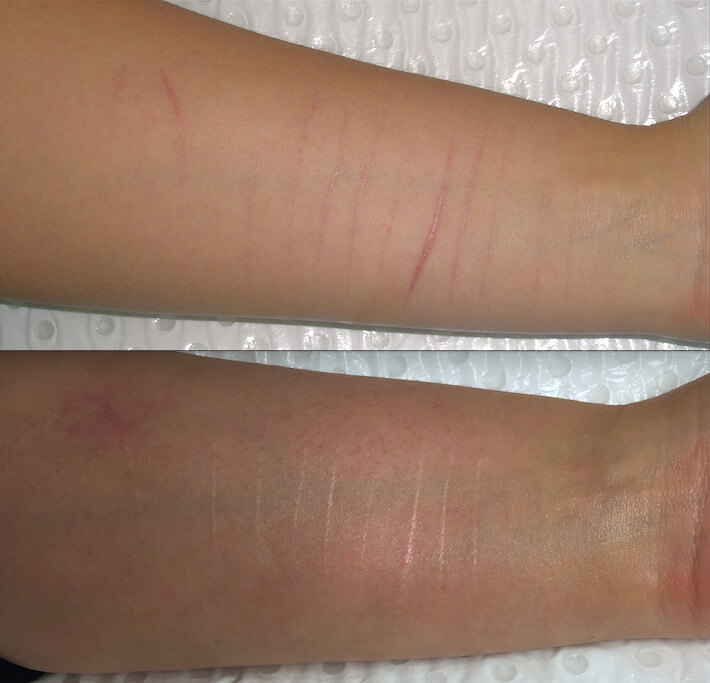 Post 5 fractional laser treatments for scarring