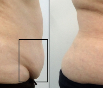 4 weeks after 1 Cryolipolysis treatment