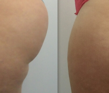 8 weeks after 1 Cryolipolysis treatment