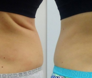 Gallery Cosmedical Skin Solutions Perth