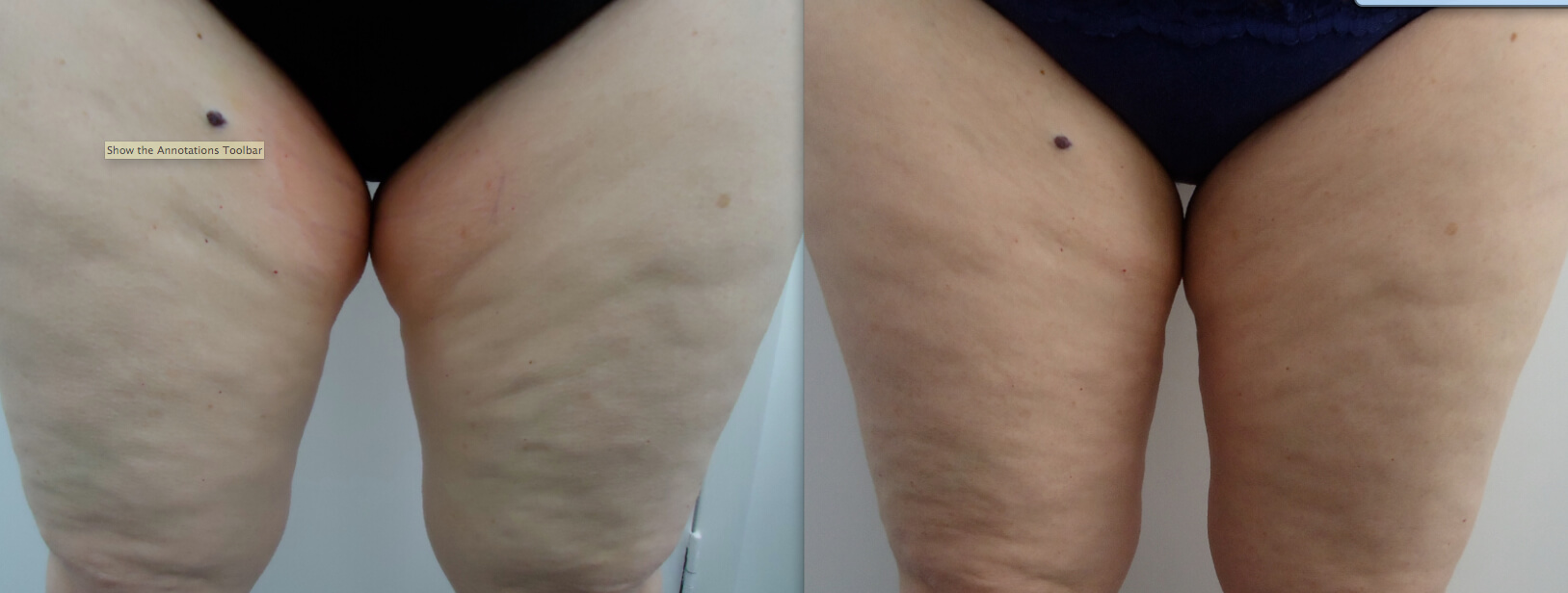Permanent Fat Removal Fat Freezing Cryolipolysis