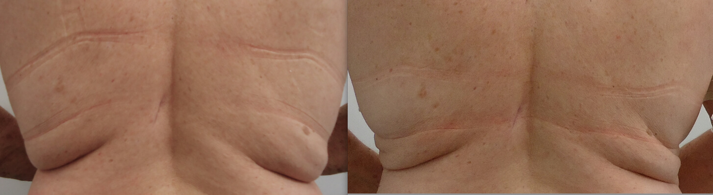 1 x Cryolipolysis mid back