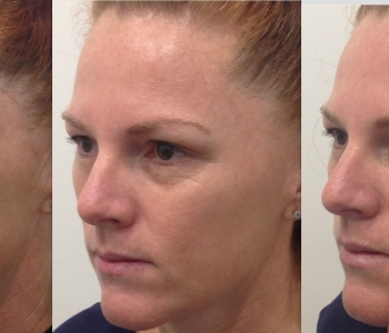 Before, 2 weeks post skin needling and immediately post non surgical face lift