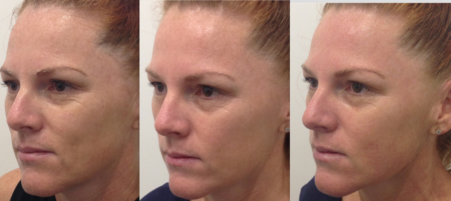 Hifu Non Surgical Face Lift Cosmedical Skin Solutions Perth