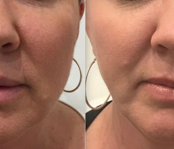 12 weeks post non surgical face lift. Note smoother jawline, reduction of pores and wrinkles