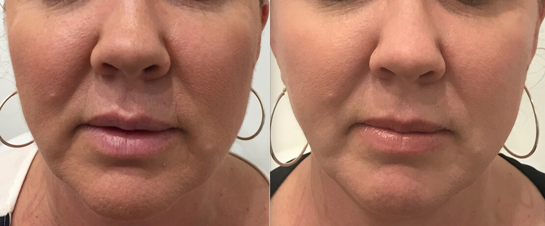 12 weeks post HIFU non surgical face lift