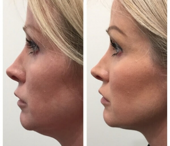 12 weeks post non surgical face lift