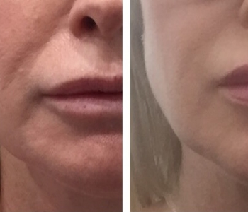 12 wks post non surgical face lift