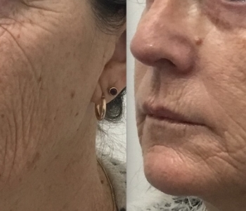 2 wks post Non surgical face lift