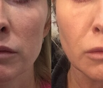 9 wks post non surgical face lift