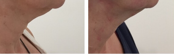Immed non surgical neck lift