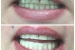 Teeth Whitening 3