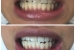Teeth Whitening 5