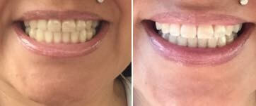 Teeth Whitening Non Peroxide