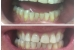 Teeth Whitening Peroxide