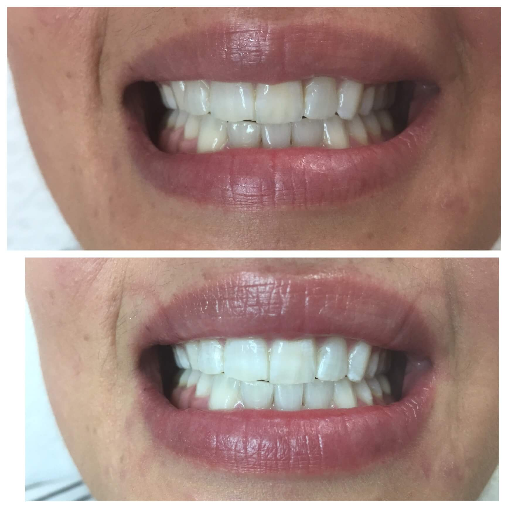 Laser Teeth Whitening Cosmedical Skin Solutions Perth