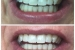 Teeth Whitening2