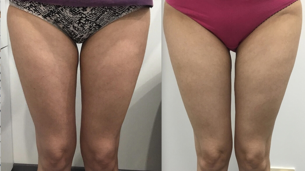 10 weeks post 1 x Fat Freezing inner thighs