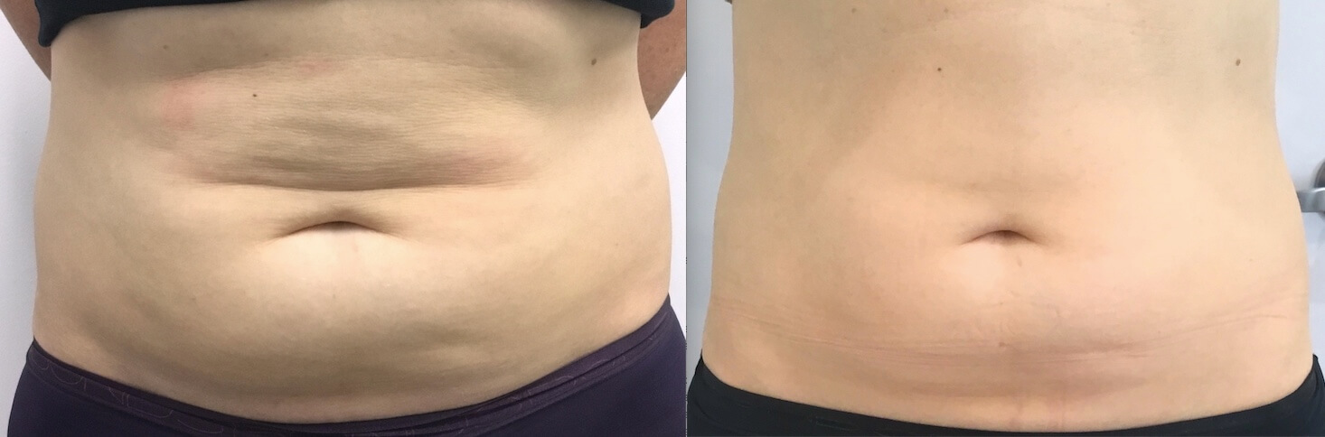 10 weeks post 1 x Fat Freezing lower stomach & flanks
