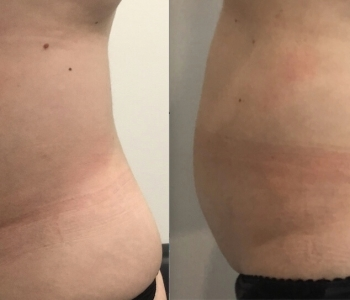 11 weeks pos 1 x Fat Freezing stomach left side