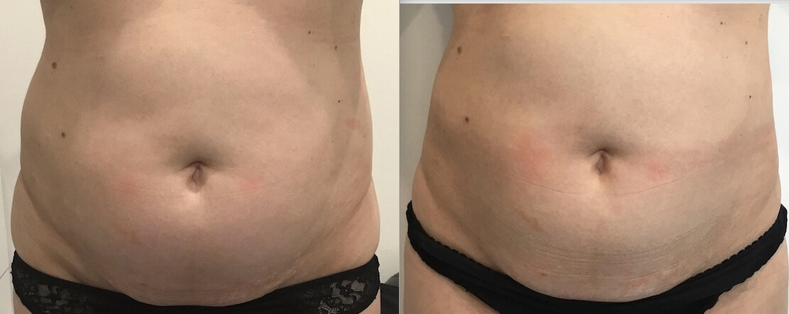 11 weeks post 1 x Fat Freezing stomach