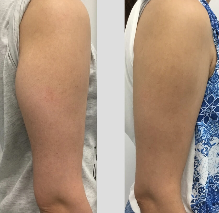 12 weeks post 1x Fat Freezing upper arm right