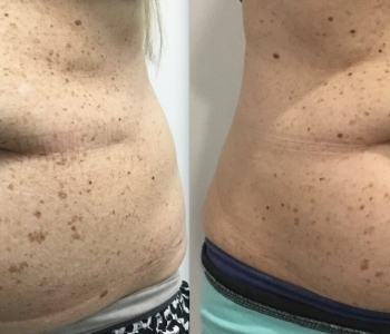 8 weeks post 1 Fat Freezing lower stomach