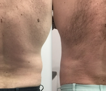 8 weeks post 1 x Fat Freezing flanks