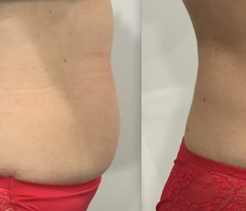 8 weeks post 1 x Fat Freezing lower stomach right
