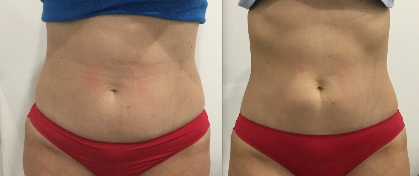 8 weeks post 1 x Fat Freezing lower stomach