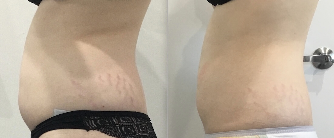 8 weeks post 1x Fat Freezing stomach