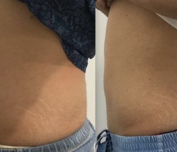 Before After 12 wks 1x Fat Freezing Stomach