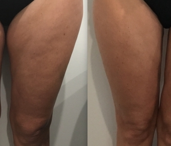 Before After 15 wks 1x Fat Freezing inner thighs