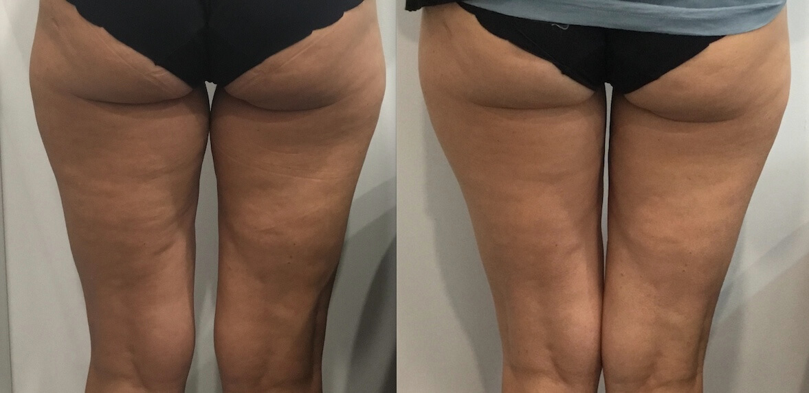 Before After 15 wks 1x Fat Freezing rear thighs