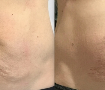 Before After 5 days Plasma skin tightening stomach